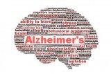 Pendekatan kontemporer penyakit Alzheimer's
