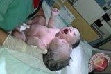 Bayi berkepala dua lahir di Makassar