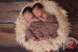 Rumah sakit ini berhasil pisahkan kepala anak kembar umur setahun