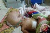 Operasi Amanda penderita kepala membesar berjalan lancar