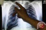 Jalan berliku menuju Indonesia Bebas TBC pada 2030