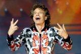Mick Jagger bakal jalani operasi jantung