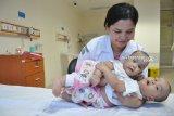 Bayi kembar siam Adam dan Malik jalani operasi pemisahan, ini kondisinya