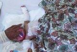 Memilukan, Bayi 10 bulan di Inhil alami luka bakar 60 persen
