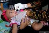 Imunisasi bayi harus tetap jalan selama pandemi COVID-19