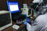 9.106 sampel uji COVID-19 telah diperiksa di Lab RSWS Makassar