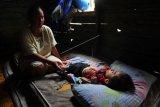 Kasus Gizi Buruk Anak Ditemukan di Tungkal Ilir, Tanjabbar Jambi