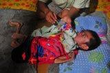 Seorang Ibu merawat anaknya Muhammad Jumadil Ardiansyah (9) yang didiagnosa menderita gizi buruk di rumahnya di Tungkal Ilir, Tanjungjabung Barat, Jambi, Sabtu (27/6/2020). Data Dinas Kesehatan Provinsi Jambi tahun 2020 menyebutkan hingga April tahun ini telah ditemukan sebanyak 34 pasien gizi buruk di provinsi itu. ANTARA FOTO/Wahdi Septiawan/hp.