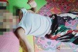 Dinkes : balita Padang Laweh bukan murni gizi buruk