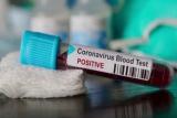 Pasien sembuh COVID-19 tercatat 80.952 orang, kasus positif jadi 125.396