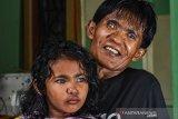 Di balik fenomena anak bermata biru di Pekanbaru