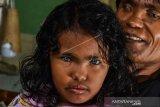 Keluarga Mata Biru Pekanbaru