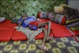 Iqbal Maulana, penderita gizi buruk terbaring di kamarnya di Desa Peledah, Kecamatan Padaherang, Kabupaten Pangandaran Jawa Barat, Jumat (18/6/2021).  Anak berusia 19 tahun dengan berat badan 12 kilogram tersebut menderita gizi buruk sejak berusia lima bulan. ANTARA FOTO/Adeng Bustomi/nym.