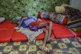 Penderita gizi buruk Iqbal Maulana terbaring dikamarnya di Desa Peledah, Kecamatan Padaherang, Kabupaten Pangandaran Jawa Barat, Jumat (18/6/2021). Iqbal yang berusia 19 tahun dengan berat badan 12 kilogram tersebut menderita gizi buruk sejak berusia lima bulan. ANTARA FOTO/Adeng Bustomi/agr