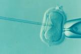 Akupuntur terbukti bermanfaat dalam program bayi tabung