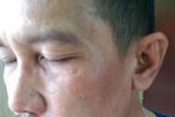 Anggotanya dipukuli saat meliput, Ketua PWI Dumai dampingi korban lapor polisi