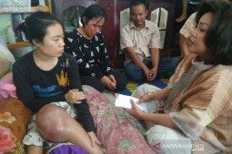 Kunjungi Ayu penderita tumor tulang, Satika: Tuhan mengasihimu