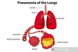Kenali gejala tidak khas pneumonia pada lansia thumbnail