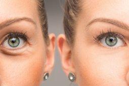 Unsur kandungan kosmetik yang bantu hilangkan hitam di bawah mata