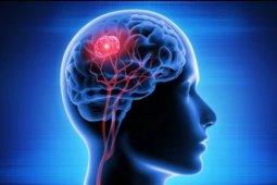 Kenali gejala cara pengobatan tumor otak