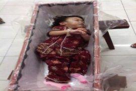 Sasa Bayi Dempet Asal Landak Meninggal Dunia