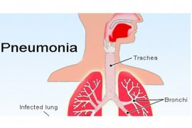 Ministry watchful for mysterious pneumonia infection in Indonesia