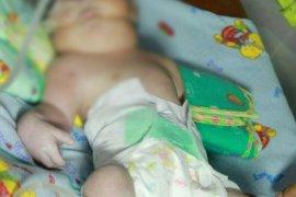 Tips Cara Merawat Kulit Bayi