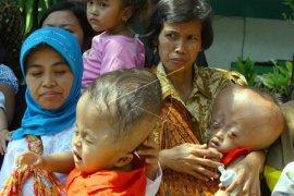 Garuda Indonesia kunjungi penderita hydrochepalus