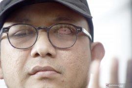 Penyidik KPK Novel Baswedan positif terjangkit COVID-19