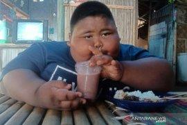 Lagi, bocah obesitas di Karawang berharap bantuan pemerintah
