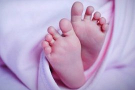 Miris, ada bayi terlahir dengan usus terburai keluar perut di Medan