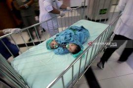 Bayi kembar siam asal Kendari jalani operasi pemisahan (Video)