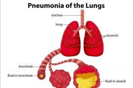 China akui ada 139 kasus baru pneumonia selama akhir pekan