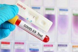 Diskes Bengkalis baru gunakan 220 rapid test COVID-19