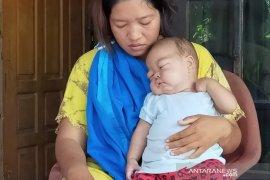 Ginjal bocor, bayi sembilan bulan di Seluma butuh donasi