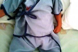 Kondisi bayi pengidab bocor jantung stabil