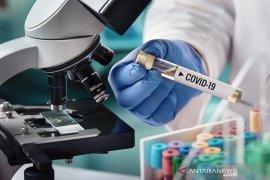 Ilmuwan di China mulai uji klinis tahap dua vaksin COVID-19