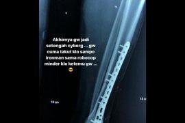 Sammy Simorangkir jalani operasi kaki kiri usai kecelakaan motor