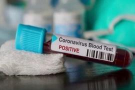 Kasus positif COVID-19 Indonesia bertambah 2.098 jadi 132.816 kasus