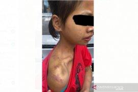Polisi Malaysia menangkap dua orang penyiksa PRT WNI