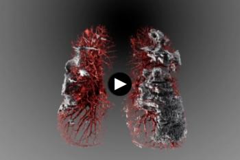 Visualisasi dampak corona terhadap paru-paru