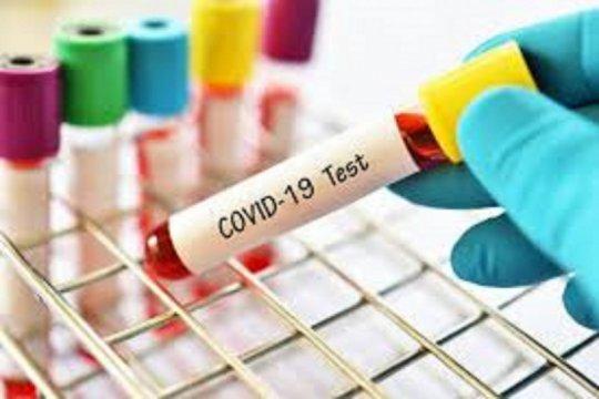 Percepatan Penanganan COVID-19 RSBT operasikan Laboratorium Pemeriksaan PCR