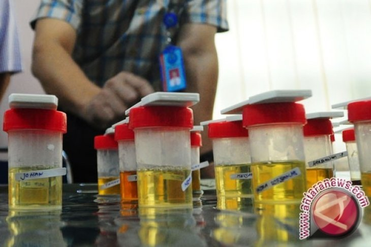 100 Prajurit Korem 121/ABW Ikuti Tes Urine