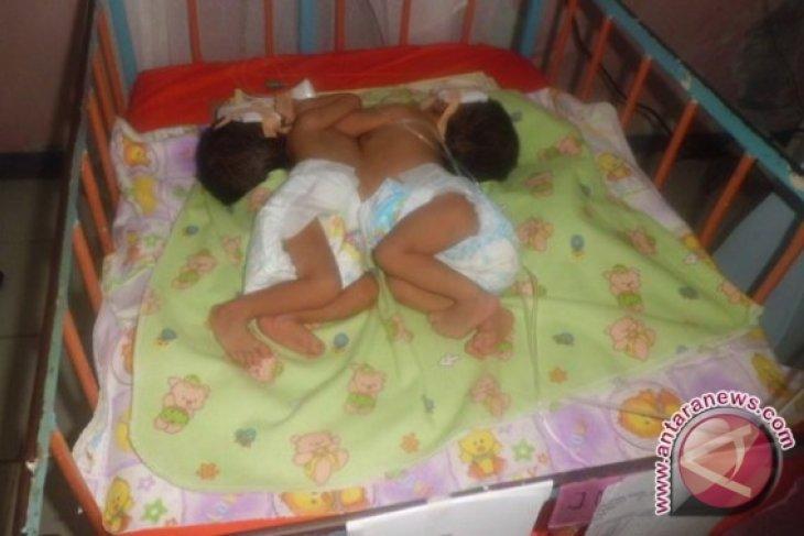 Operasi bayi kembar siam pakai dana jamkesprov