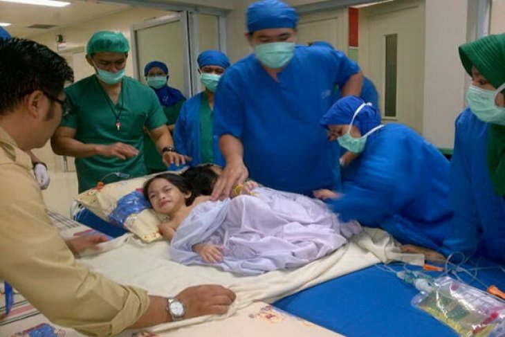 Bayi Kembar Siam Asal Landak Berhasil Dipisahkan