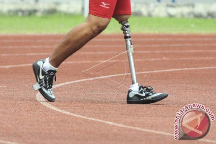 Dapat kaki palsu setelah menyurati Presiden Jokowi