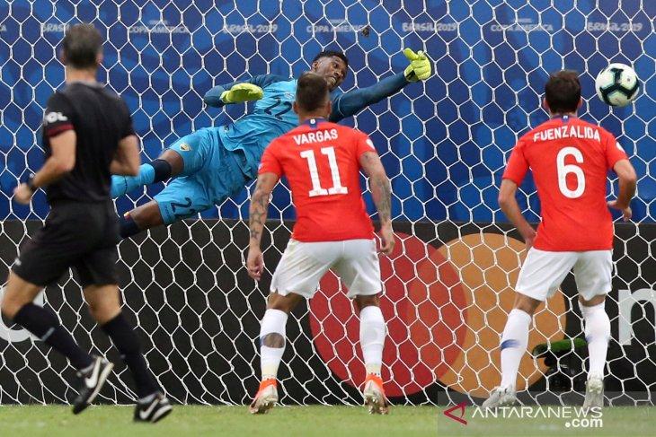 Chile menghadapi dilema mainkan Sanchez atau tidak lawan Uruguay