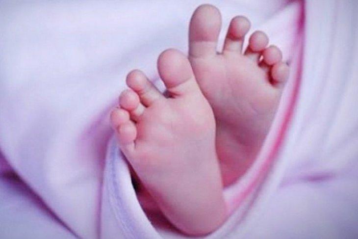 Bayi malang lahir dengan kelainan multiple di Buleleng