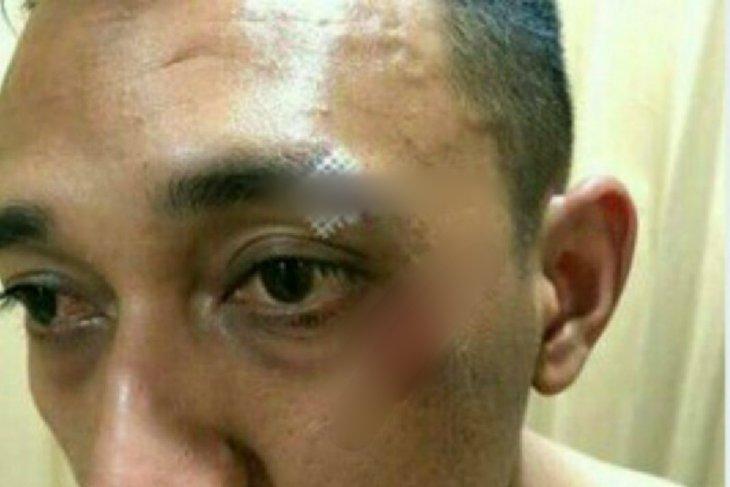 Kapolsek Patumbak AKP Ginanjar dikeroyok bandar narkoba