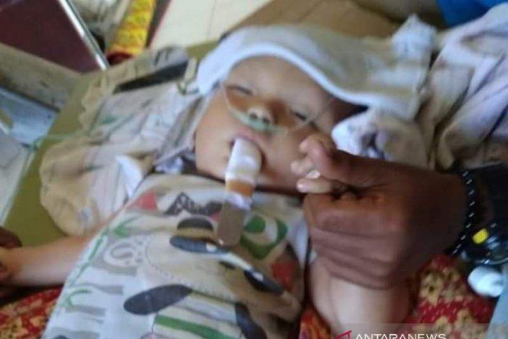 Bayi penderita infeksi otak di Bangka Brat butuh bantuan berobat